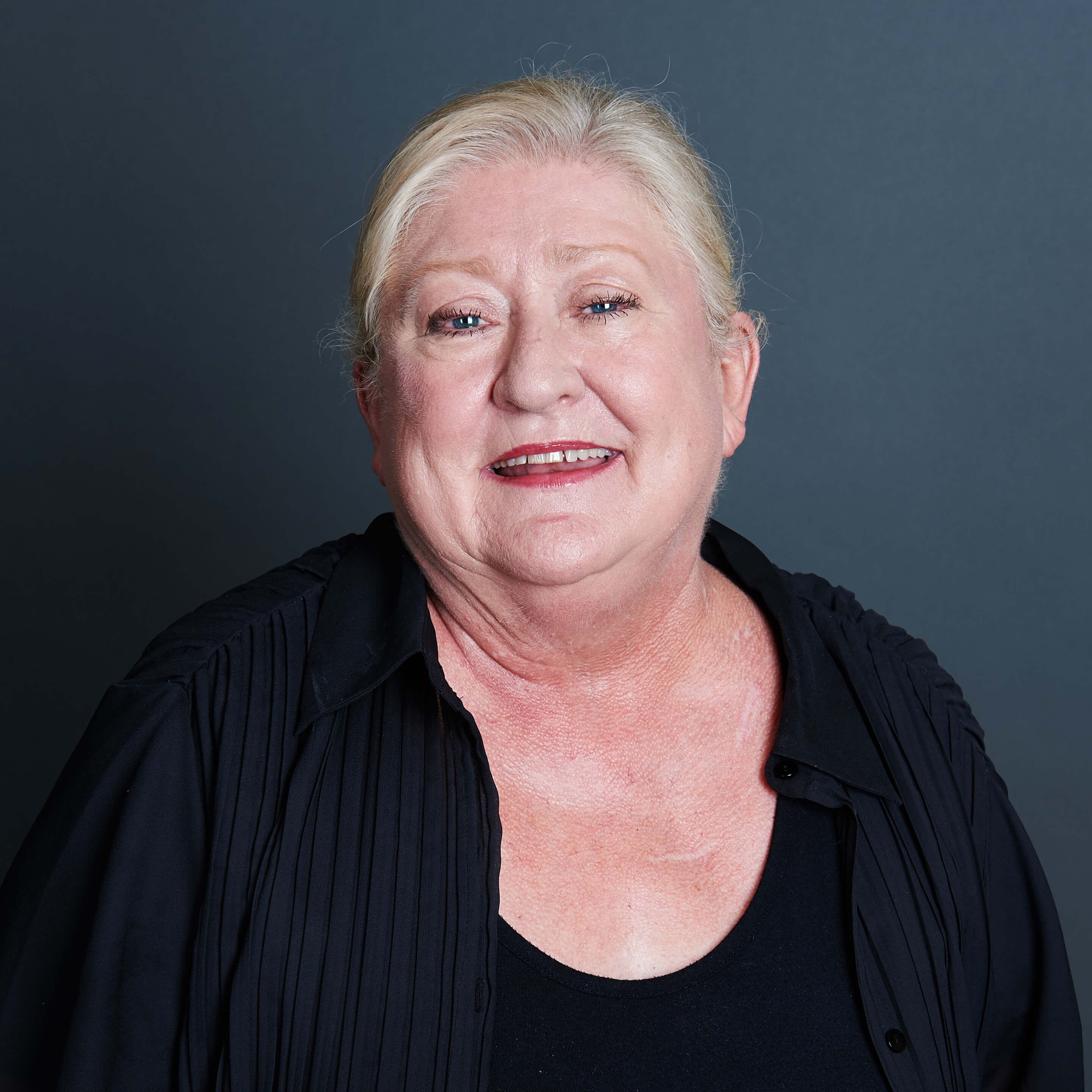 Susie Watkins